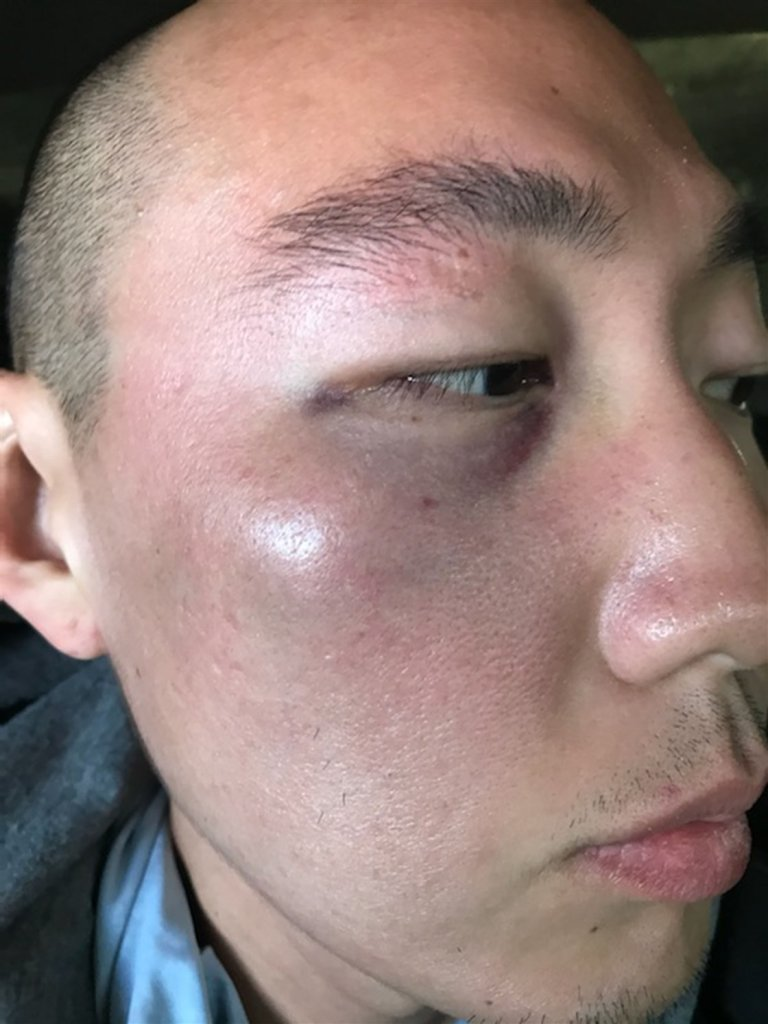 Denny Kim's injury from attack