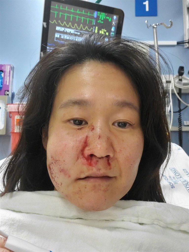 Nasu suffered multiple facial injuries after the attack, including three fractures in her nose, one cheek fracture and broken teeth.